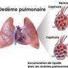 Œdème pulmonaire, œdème aigu du poumon , œdème aigu pulmonaire ou eau dans les poumons