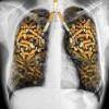 L'arrêt chez les victimes d'une maladie liée au tabac