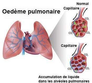 Œdeme-pulmonaire-œdeme-aigu-du-poumon-œdeme-aigu-pulmonaire-ou-eau-dans-les-poumons