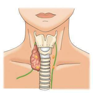 3.thyroide_lobog