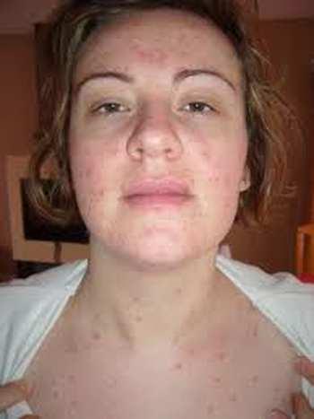 Symptômes de la rougeole chez l'adulte